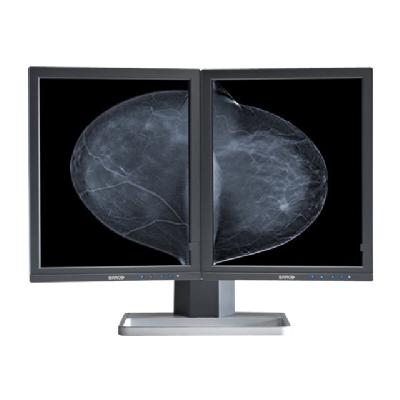 "Barco Mammo Tomosynthesis 5MP MDMG-5221 - LCD monitor - 5MP - grayscale - 21.3"" D with Display Controller:2 x 5MP TOMO MDMG-5221 B"